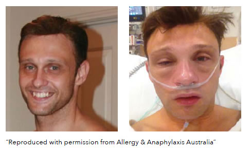 Severe allergic in a man